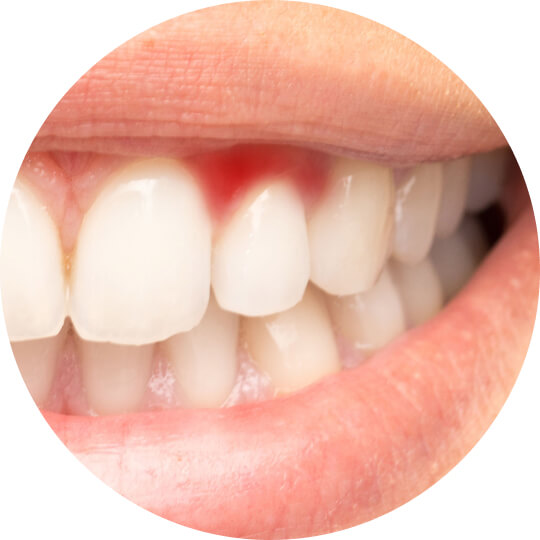 A person's smile showing an area of red and irritated gum tissue