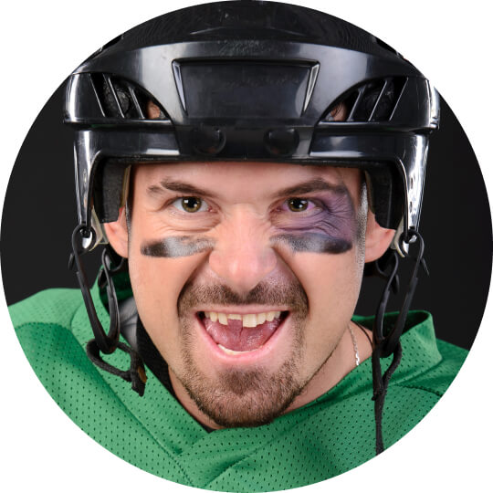 A man with a black eye and broken front tooth, wearing a helmet and green jersey