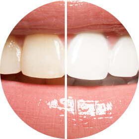 Before and after internal bleaching teeth whitening at Nevada Endodontics